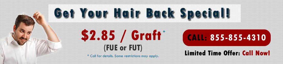 Orlando hair transplants cheap